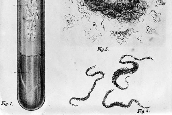 Ink drawing of a Bacillus Tuberculosis culture in four figures: a test tube, specimen tray, and two close ups of the wormy looking bacteria.